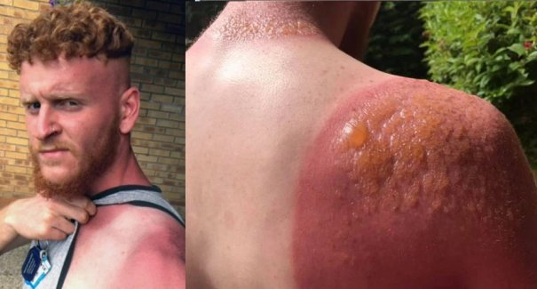 Nasty: 20-yr-old man gets severe second degree burns after not using