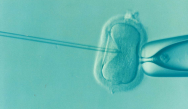 IVF turns 40 today, and after six million babies conceived, the revolutionary procedure is still going strong